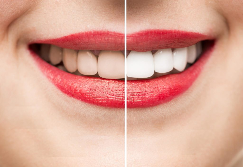 Excellent Tips For Bright Whitening Teeth